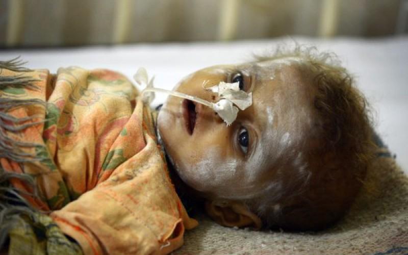Vague de décès d'enfants dans un désert du sud du Pakistan