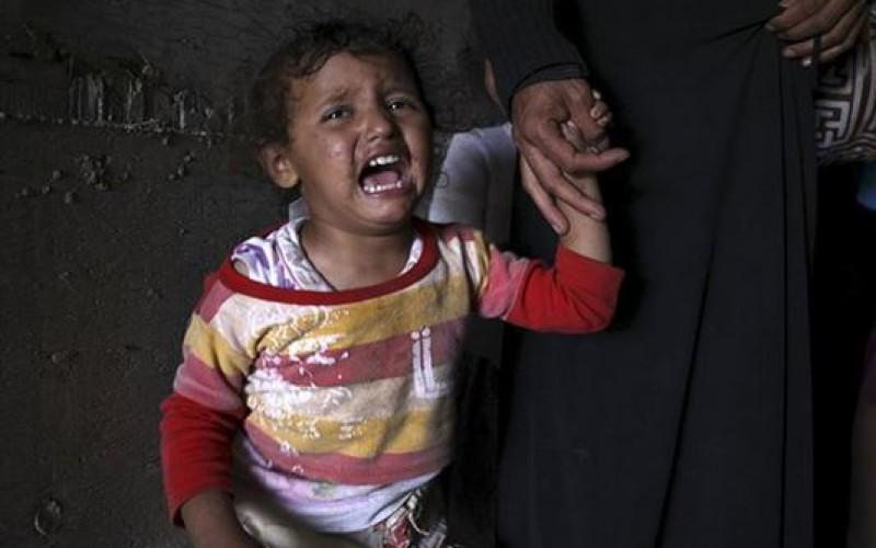 Crise humanitaire au Yémen, cri d'alarme des organisations de défenses des droits de l'homme pour les civils
