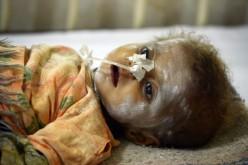 Au Pakistan, les enfants se meurent dans le désert du Thar